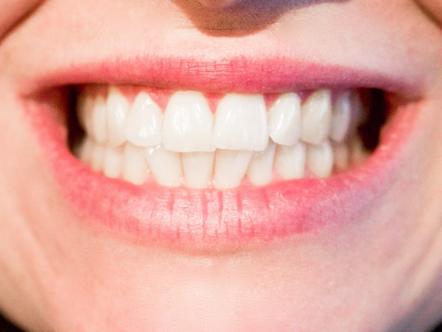Get that Movie Star Smile with Cosmetic Dentistry